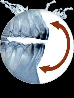Praxisklinik Bartsch - CMD Funktionstherapie gegen Zähneknirschen in Karlsruhe