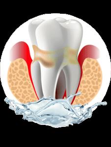 Praxisklinik Bartsch - Parodontologie