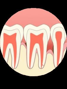 parodontitits