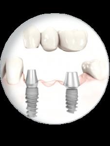 unsere-implantologie-in-karlsruhe_b