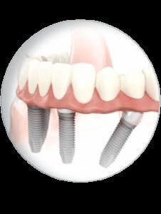 unsere-implantologie-in-karlsruhe_c
