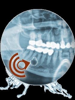 Praxisklinik Bartsch - Zahnprobleme durch Zystem im Kiefer